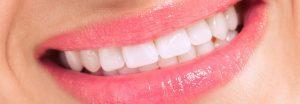 Prothèse dentaire Tunisie