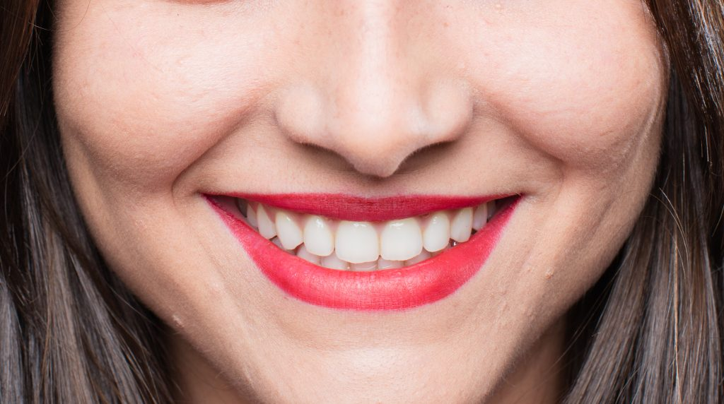 pose facette dentaire