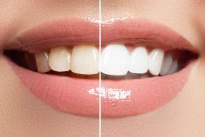 blanchiment clinique dentaire tunisie