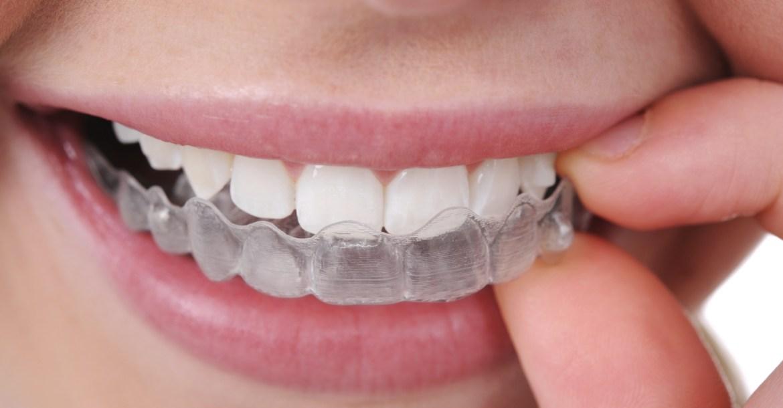 prothèse clinique dentaire tunisie